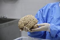 한국뇌은행, 연구용 사후 뇌기증 100증례 확보